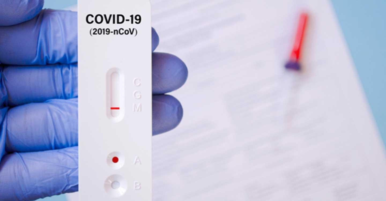 Los farmacéuticos, satisfechos con la dispensación de test de autodiagnóstico frente a la COVID-19 en farmacias, reclaman un protocolo de coordinación epidemiológica